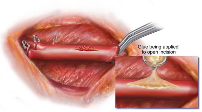 surgical glue