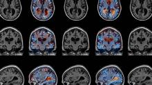 Alzheimer's MRI scan